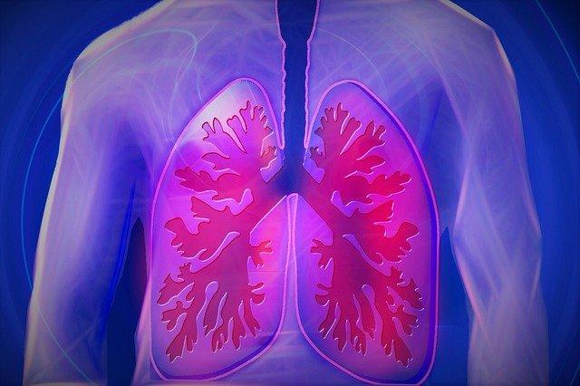 pulmao-bronquite